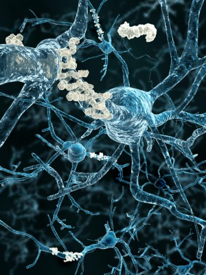 Alzheimers and Beta-amyloid plaques